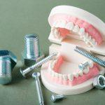 歯の破折に注意しましょう!